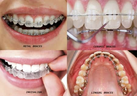 dentist teeth straightening