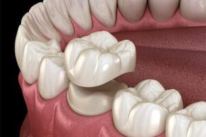 dental ceramic cap crown