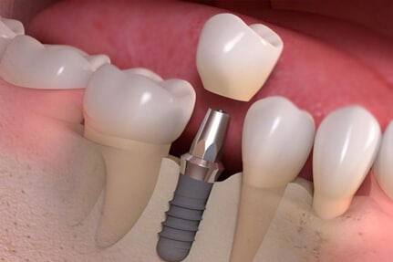 best affordable dental clinic